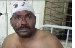 Resident of dharmavaram attacked and injured by MLA followers